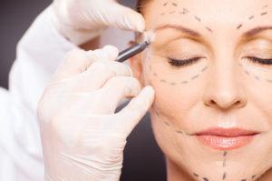 Eye Lift Surgery In Sydney