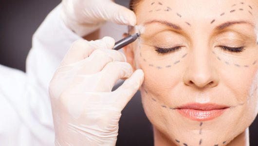 What To Expect During The First Week After Expert Eye Lift Surgery In Sydney